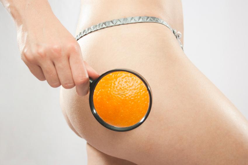 Narancsbőr kialakulása